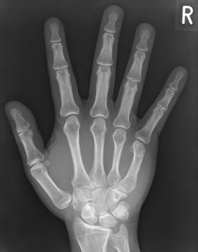 X Ray image of a hand